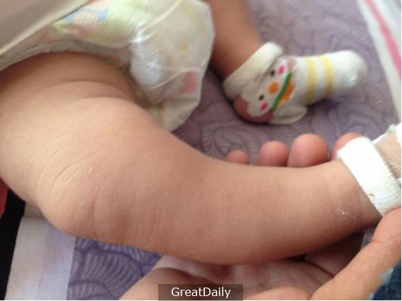 Mẹ trẻ mua giày rộng cho con để trừ hao, không ngờ lại hại cả đời con - Ảnh 1.