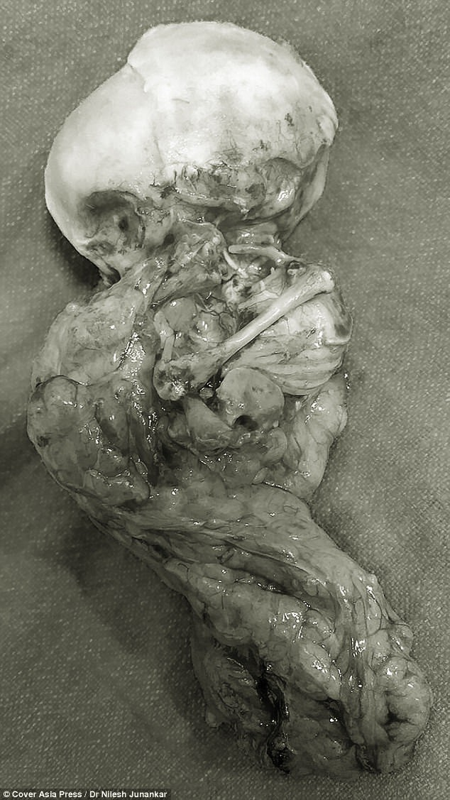 15 năm sau khi phá thai, bà mẹ sốc nặng khi phát hiện con vẫn còn trong bụng - Ảnh 3.