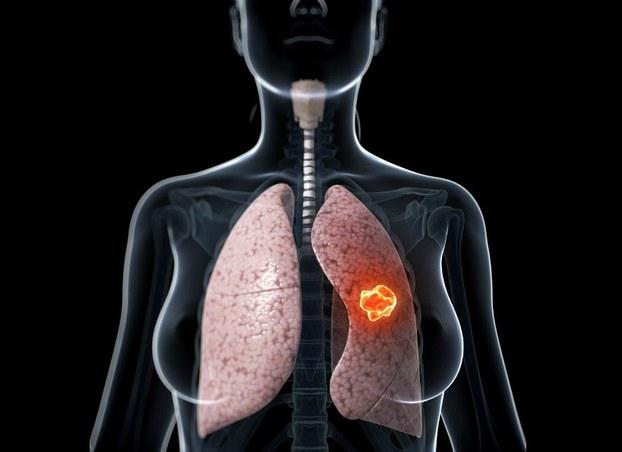 Những dấu hiệu lạ trên cơ thể giúp bạn phát hiện bệnh ung thư trước vài năm - Ảnh 2.