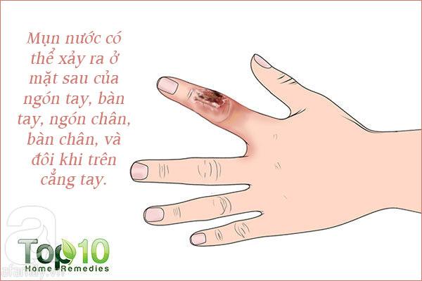 Những tổn thương trên da liên quan đến bệnh tiểu đường: Nhìn là nhận ra ngay - Ảnh 7.