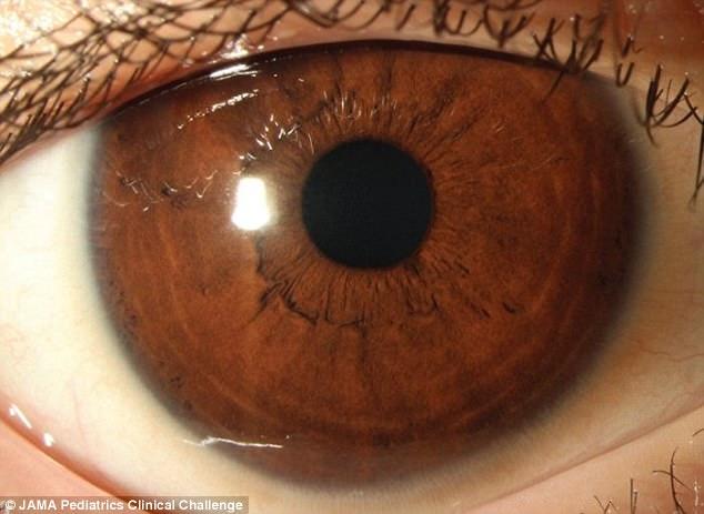 Ăn kiêng nghiêm ngặt, cậu bé 11 tuổi bị suy giảm thị lực và có nguy cơ bị mù vĩnh viễn - Ảnh 2.