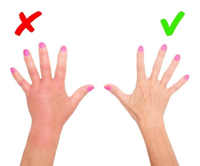 8 biểu hiện trên da cảnh báo bệnh trong cơ thể có thể bạn đang mắc mà không biết - Ảnh 4.