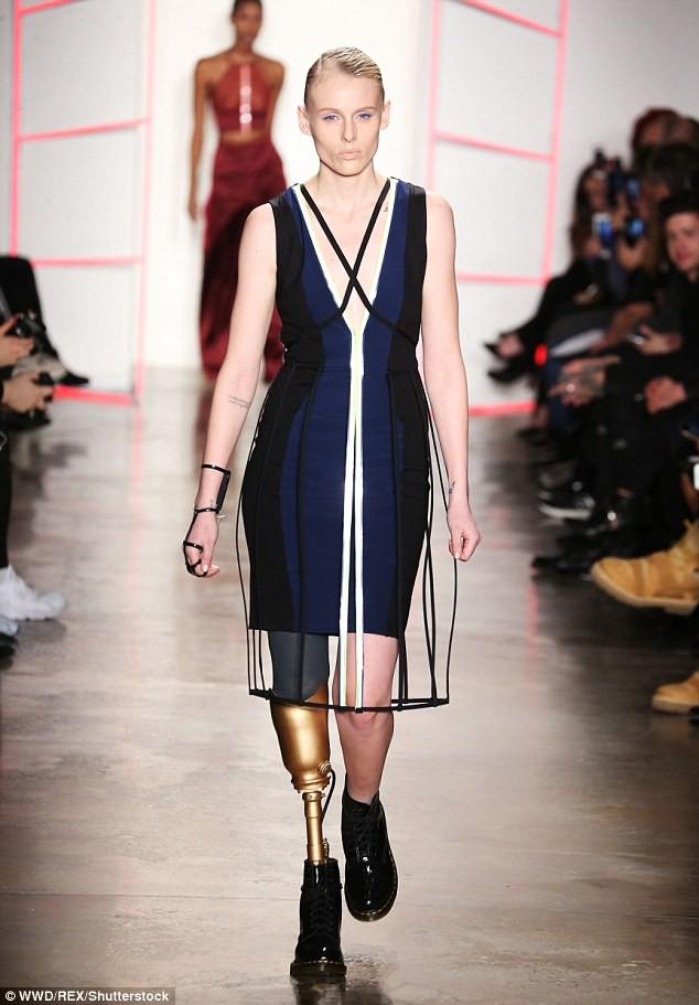 Từ một người mẫu xinh đẹp, tràn trề nhựa sống, cô gái này phải cắt bỏ một chân vì món đồ rất nhiều chị em đang dùng - Ảnh 5.