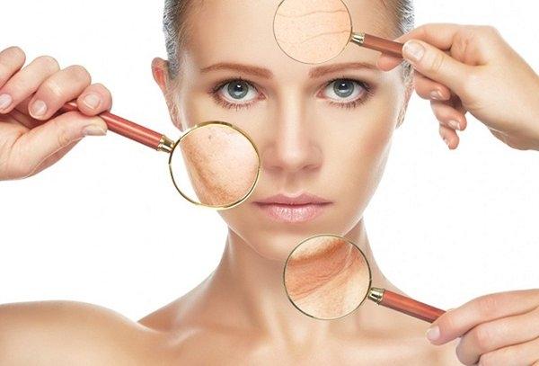 3 bệnh phổ biến ở da mà chị em nào cũng sợ gặp phải và cách xử lý để có làn da khỏe mạnh, xinh đẹp - Ảnh 1.