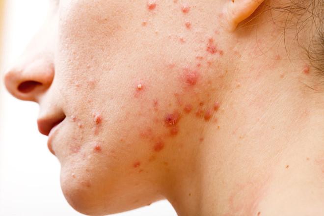 3 bệnh phổ biến ở da mà chị em nào cũng sợ gặp phải và cách xử lý để có làn da khỏe mạnh, xinh đẹp - Ảnh 2.