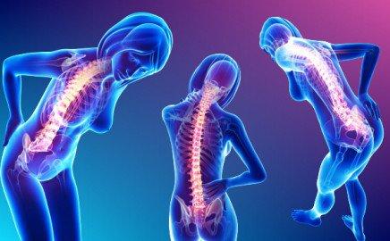 Cách đơn giản nhanh chóng loại bỏ cơn đau lưng và đau cổ mà không cần dùng thuốc - Ảnh 2.