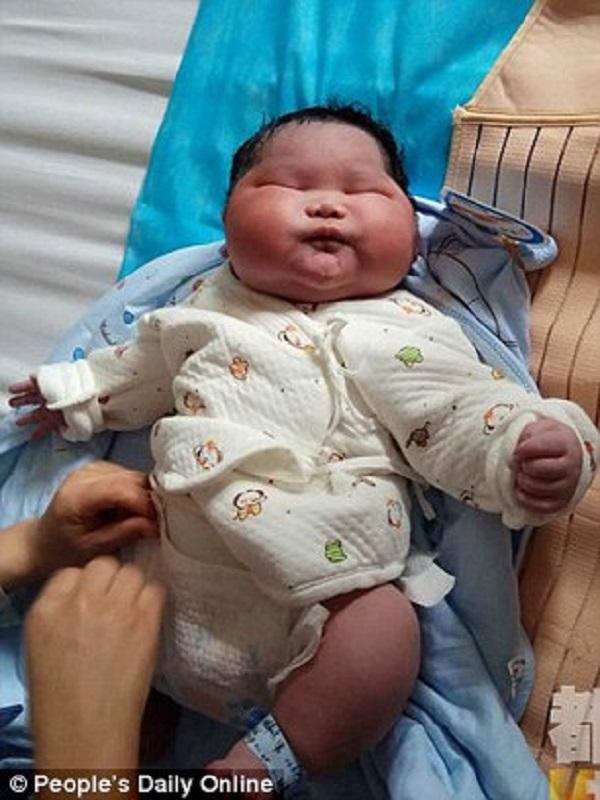 Được bác sĩ thông báo trước nhưng bố mẹ vẫn không thể ngờ con sinh ra thế này - Ảnh 1.