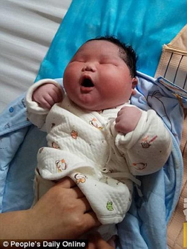 Được bác sĩ thông báo trước nhưng bố mẹ vẫn không thể ngờ con sinh ra thế này - Ảnh 2.