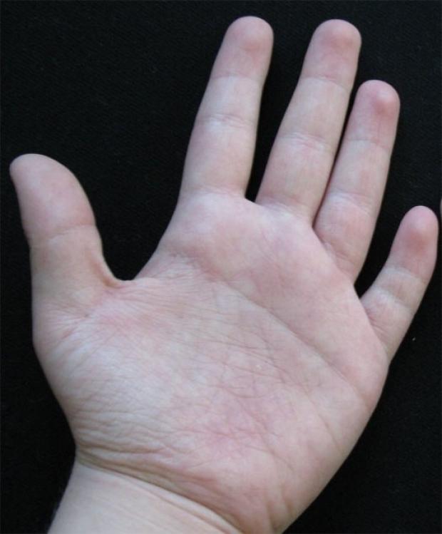 Ai cũng có đường chỉ tay nhưng không biết chúng hình thành như thế nào và có tác dụng gì - Ảnh 4.