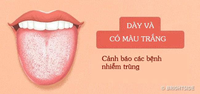 Bằng cách kiểm tra lưỡi mỗi ngày, rất có thể bạn sẽ phát hiện sớm những căn bệnh mình đang gặp phải - Ảnh 14.