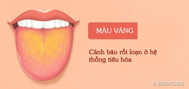 Bằng cách kiểm tra lưỡi mỗi ngày, rất có thể bạn sẽ phát hiện sớm những căn bệnh mình đang gặp phải - Ảnh 12.