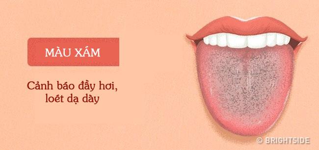 Bằng cách kiểm tra lưỡi mỗi ngày, rất có thể bạn sẽ phát hiện sớm những căn bệnh mình đang gặp phải - Ảnh 11.