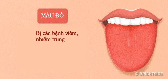 Bằng cách kiểm tra lưỡi mỗi ngày, rất có thể bạn sẽ phát hiện sớm những căn bệnh mình đang gặp phải - Ảnh 9.