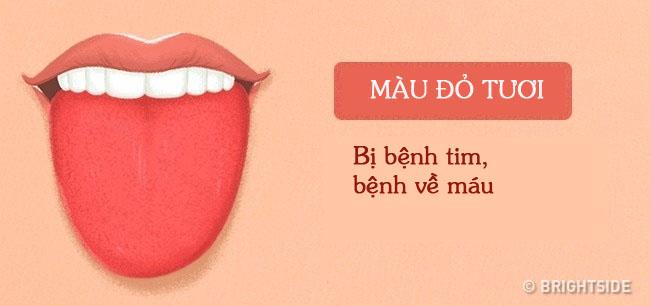 Bằng cách kiểm tra lưỡi mỗi ngày, rất có thể bạn sẽ phát hiện sớm những căn bệnh mình đang gặp phải - Ảnh 8.