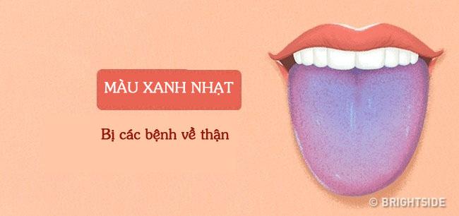Bằng cách kiểm tra lưỡi mỗi ngày, rất có thể bạn sẽ phát hiện sớm những căn bệnh mình đang gặp phải - Ảnh 5.