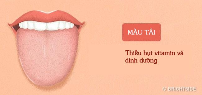 Bằng cách kiểm tra lưỡi mỗi ngày, rất có thể bạn sẽ phát hiện sớm những căn bệnh mình đang gặp phải - Ảnh 4.