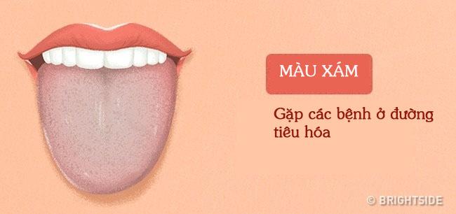 Bằng cách kiểm tra lưỡi mỗi ngày, rất có thể bạn sẽ phát hiện sớm những căn bệnh mình đang gặp phải - Ảnh 2.