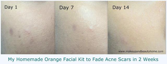 4 bước đánh mờ sẹo thâm chỉ sau 2 tuần là có kết quả rõ rệt - Ảnh 1.