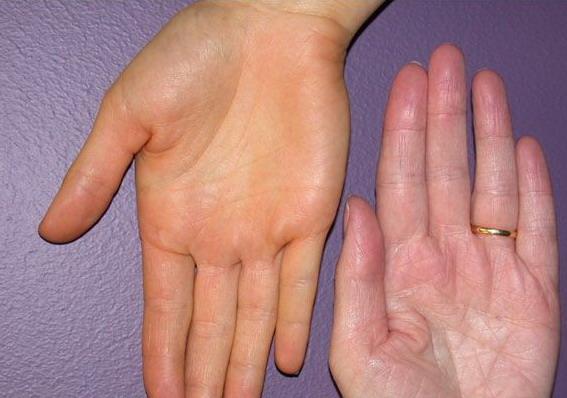 Nhìn tay bắt bệnh: 30 vấn đề sức khỏe sẽ thể hiện rõ qua vẻ ngoài của bàn tay - Ảnh 1.