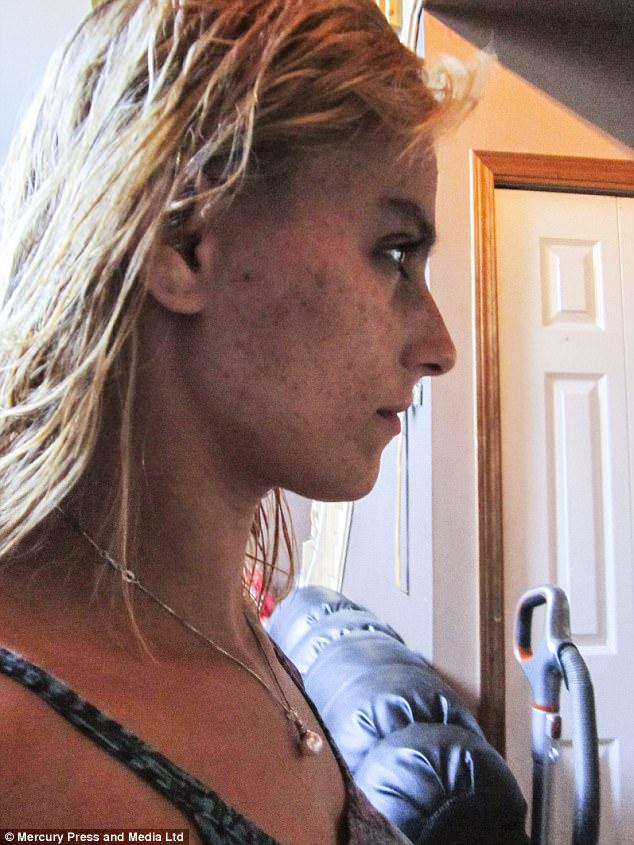 Sau lần sảy thai, người phụ nữ xinh đẹp bị hủy nhan sắc vì chứng ám ảnh kinh dị - Ảnh 3.