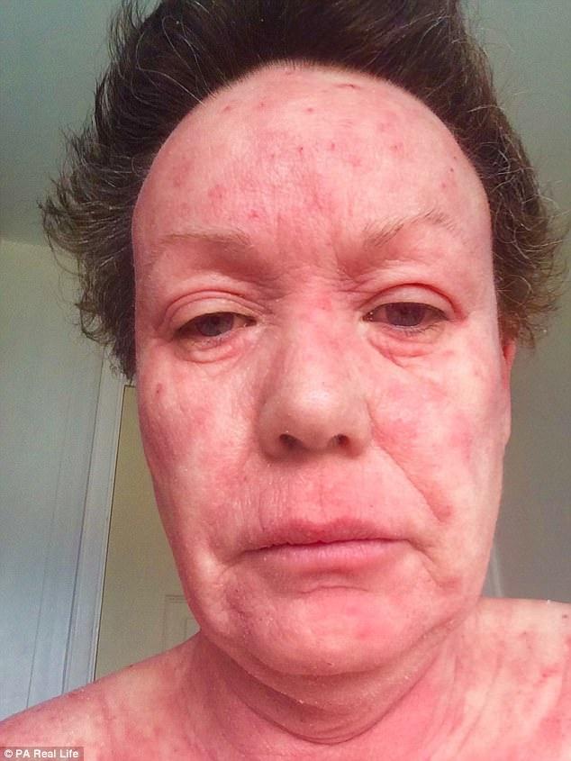 Nghiện bôi kem chống viêm da, người phụ nữ nhiều năm sống với làn da bị bong tróc và rỉ máu toàn thân - Ảnh 1.