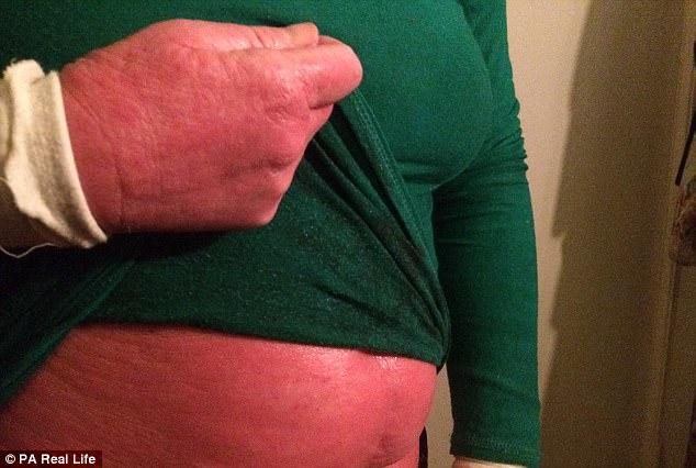 Nghiện bôi kem chống viêm da, người phụ nữ nhiều năm sống với làn da bị bong tróc và rỉ máu toàn thân - Ảnh 2.