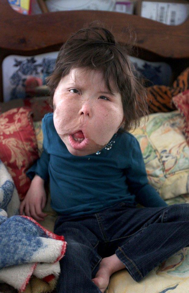 Mắc bệnh hiếm cả bác sĩ cũng chưa đặt tên, bé gái 9 tuổi mang gương mặt khổng lồ biến dạng - Ảnh 5.
