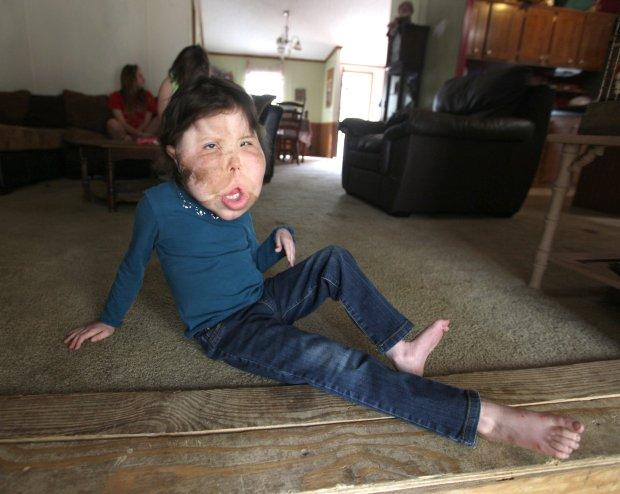 Mắc bệnh hiếm cả bác sĩ cũng chưa đặt tên, bé gái 9 tuổi mang gương mặt khổng lồ biến dạng - Ảnh 4.