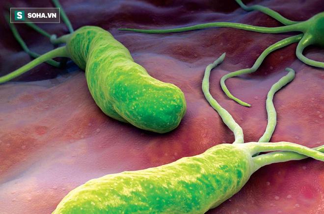 Ai mắc vi khuẩn HP cũng bị ung thư dạ dày? Đây là câu trả lời của chuyên gia ung thư - Ảnh 2.