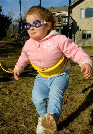 Nhai lưỡi và tự cào mù cả mắt, cuộc sống đầy rẫy hiểm họa với bé gái bị mắc phải bệnh hiếm - Ảnh 5.