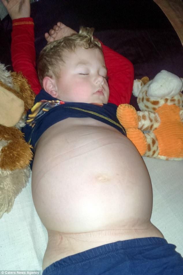 Cứ tưởng con tăng cân nên má phính bụng to, ai ngờ đưa đi khám bố mẹ mới tá hỏa khi biết rõ nguyên nhân - Ảnh 5.