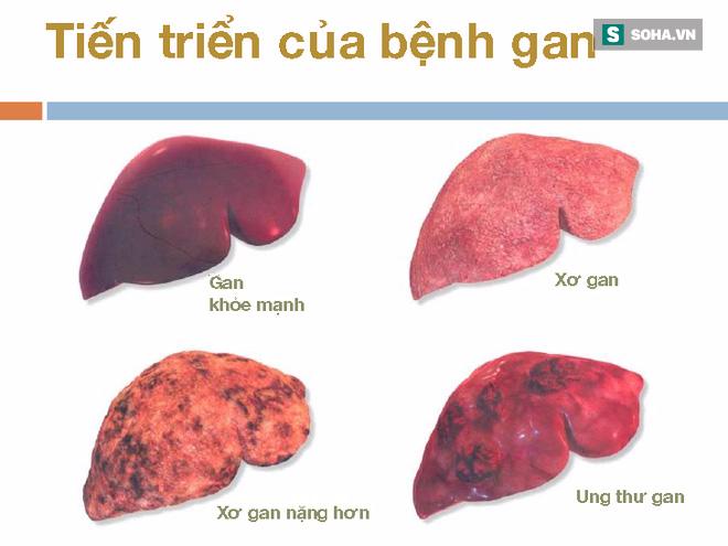 Dấu hiệu quan trọng cảnh báo bệnh gan đang tiến triển trong cơ thể, nếu có thì hãy đi khám - Ảnh 2.