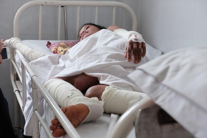 Nến rớt xuống bình xăng dưới giường, hai mẹ con thai phụ bỏng nặng, chồng chưa cưới ôm tiền ủng hộ bỏ trốn - Ảnh 9.