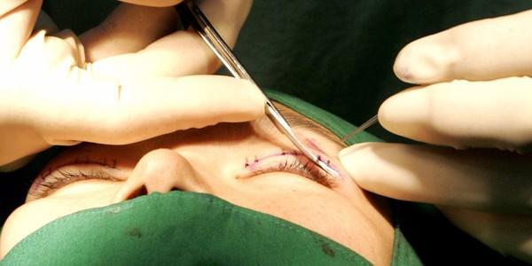 Là tiểu phẫu nhưng cắt mí hay bóc mỡ bọng mắt cũng có thể gây ra những hậu quả nhìn kinh khủng như thế này - Ảnh 1.