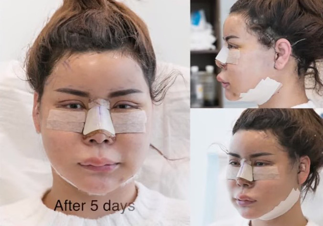 Không hài lòng với vẻ ngoài của mình, thiếu nữ lột xác xinh ngất ngây sau khi chi 1,3 tỷ phẫu thuật thẩm mỹ - Ảnh 3.