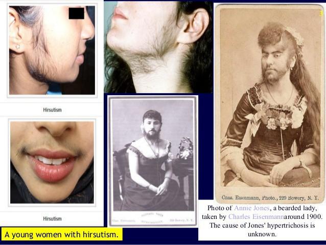 Điều kinh hoàng gì đã khiến nữ giới luôn mịn màng lại lắm lông thế này? - Ảnh 4.