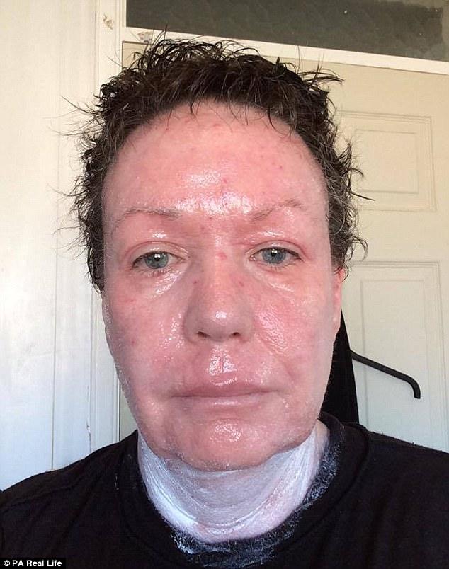 Nghiện bôi kem chống viêm da, người phụ nữ nhiều năm sống với làn da bị bong tróc và rỉ máu toàn thân - Ảnh 6.