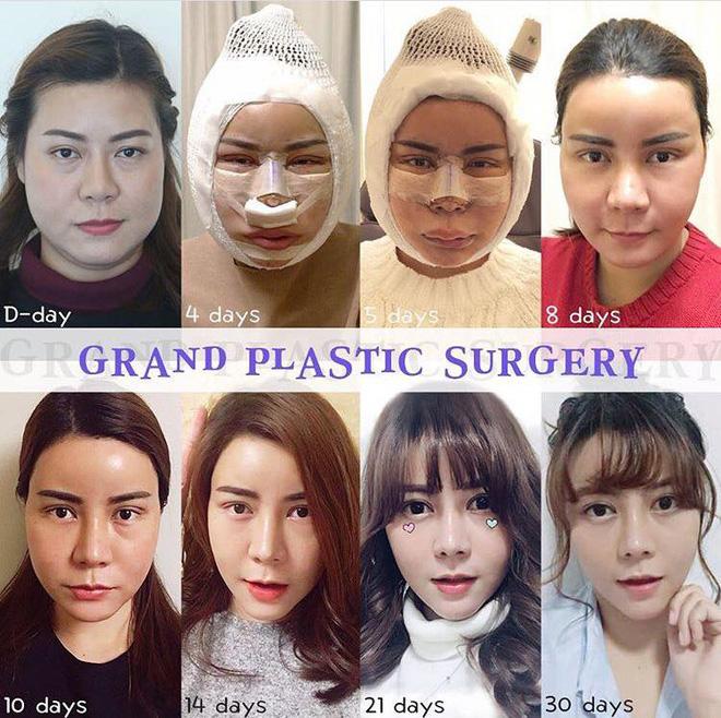 Không hài lòng với vẻ ngoài của mình, thiếu nữ lột xác xinh ngất ngây sau khi chi 1,3 tỷ phẫu thuật thẩm mỹ - Ảnh 7.