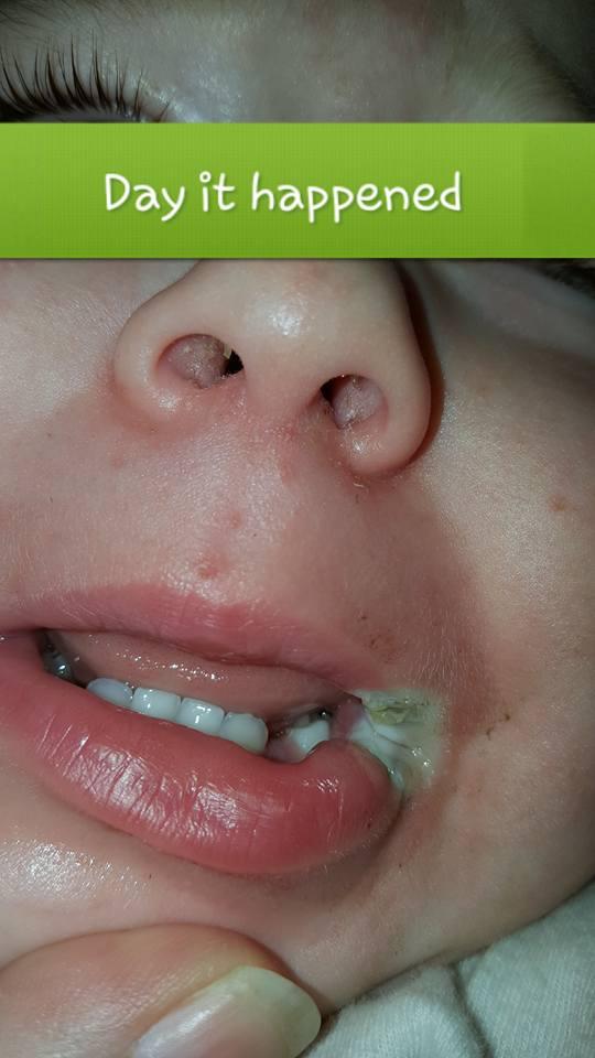Bé gái 19 tháng tuổi bị phỏng điện suýt mất cả đôi môi vì thói quen vứt sạc điện thoại lung tung của bố mẹ - Ảnh 1.
