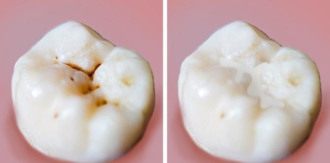 Nếu bạn phạm phải 6 thói quen này khi đánh răng, nhai thức ăn thì cần phải loại bỏ ngay còn kịp - Ảnh 8.