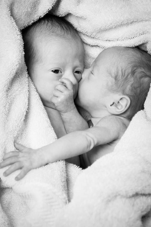 Người phụ nữ mang thai đôi cực hiếm gặp, bác sĩ nói khó sống sót nhưng siêu âm thấy cảnh tượng này - Ảnh 3.