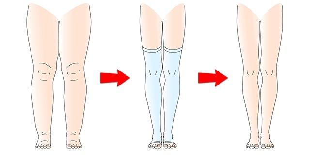 Đừng bỏ qua 8 nguyên nhân nghiêm trọng khiến cơ thể bạn bị sưng phù chỗ này chỗ kia - Ảnh 8.