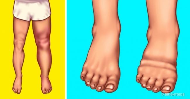 Đừng bỏ qua 8 nguyên nhân nghiêm trọng khiến cơ thể bạn bị sưng phù chỗ này chỗ kia - Ảnh 1.