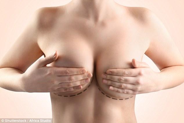 Không ít chị em quyết định phẫu thuật tháo độn ngực để tránh ung thư, phát ban, sưng và đau khớp - Ảnh 1.