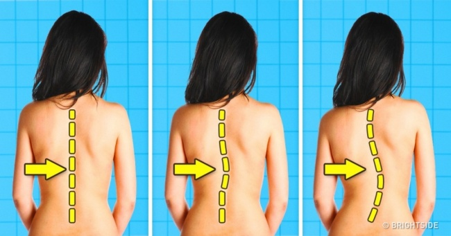 7 hoạt động hàng ngày có thể làm tổn thương, hỏng cột sống của bạn - Ảnh 1.