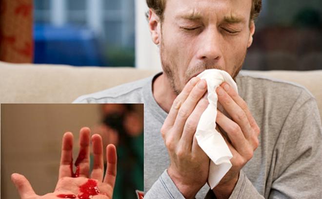 3 dấu hiệu của ung thư phổi: Chuyên gia nhắc dù chỉ 1 dấu hiệu nhỏ cũng không nên bỏ qua - Ảnh 1.