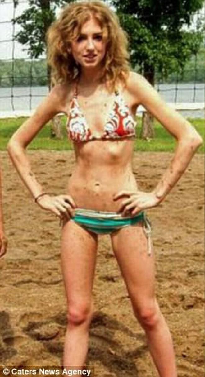 Bị crush từ chối vì béo, cô nàng giảm cân tới mức chỉ còn da bọc xương rồi hối hận nhận ra sai lầm của mình - Ảnh 1.