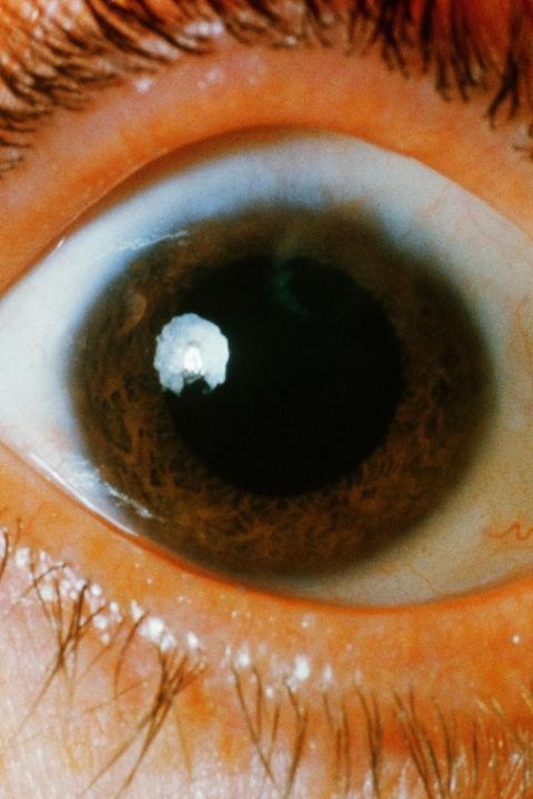 Bác sĩ nhãn khoa chỉ ra những bệnh có thể nhận biết qua đôi mắt của bạn - Ảnh 1.