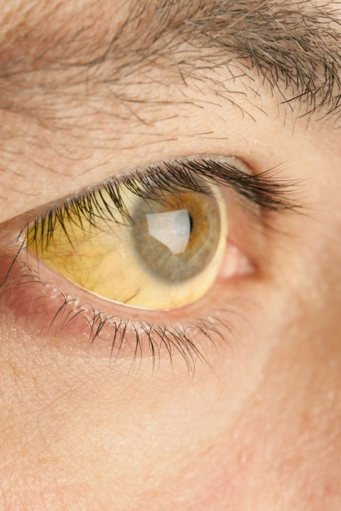 Bác sĩ nhãn khoa chỉ ra những bệnh có thể nhận biết qua đôi mắt của bạn - Ảnh 10.