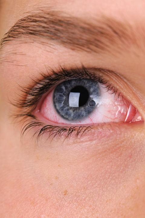 Bác sĩ nhãn khoa chỉ ra những bệnh có thể nhận biết qua đôi mắt của bạn - Ảnh 11.